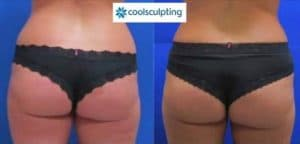 Photo slimming buttocks without surgery with coolsculpting paris