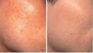 before after medium peel
