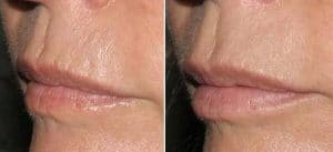 photo treatment of lips wrinkles by superficial medium and deep peel