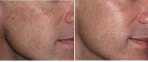 picture scar and marks laser emoval in paris non ablatif fractional laser