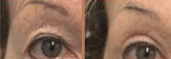photo cosmetic treatment of the eyelids without cosmetic surgery