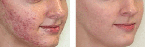 photo soigner l acne par laser