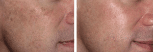 photo acne laser treatment aesthetic and dermatological solutions in paris