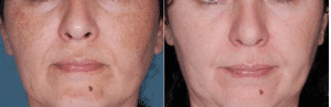 photo superficial peel with glycolic acid