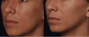 photo medium peel face