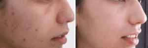 photo superficial peel