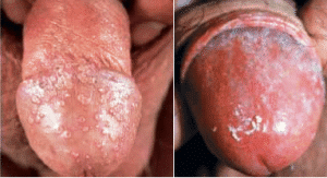 Photo enlargement of penile glans by hyaluronic acid
