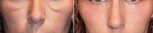 photo treatment of malar bags with botox and hyaluronic acid before after