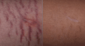 photo white and red stretch marks in paris