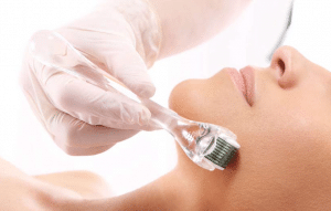 picture micro-needles skin care