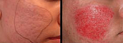 picture micro-needles cosmetic treatment