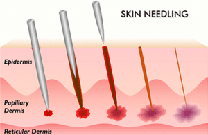 picture needling and skin needling