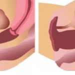 picture laser vaginoplasty in paris