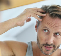 Alopecia, hair loss