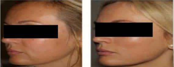 mesopeel photo