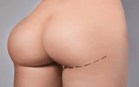 Photo augmentation fesses