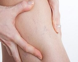Laser Treatment for Spider Veins